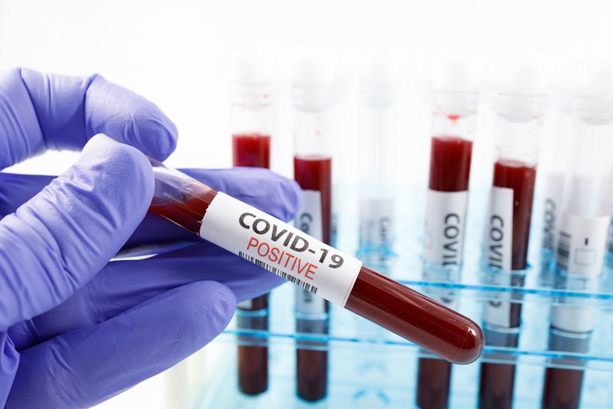 75 новых случаев коронавируса выявлено в Норильске за сутки
