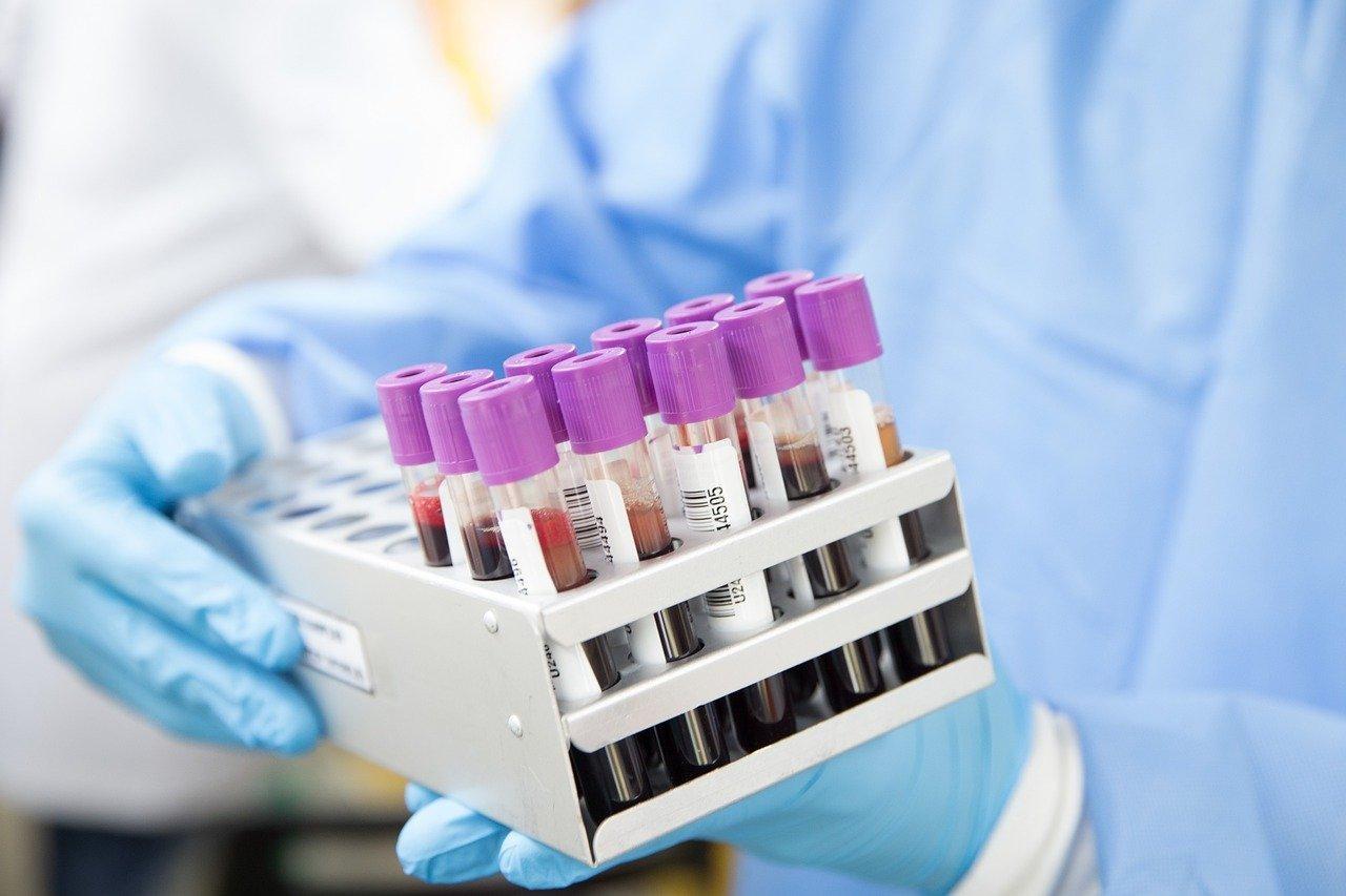Сегодня в Красноярском крае зарегистрировано 376 новых случаев заболевания коронавирусом