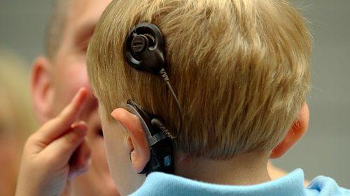 Родители детей-инвалидов могут получить адресную единовременную материальную помощь на приобретение слухового аппарата для ребенка-инвалида.