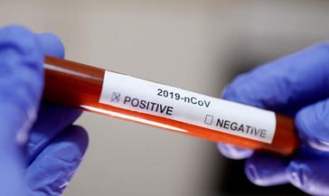COVID-19: в Норильске трое пациентов выписаны из инфекционной больницы, на лечении остаются четыре человека