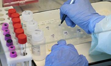 370 человек в Красноярском крае сегодня заражены коронавирусной инфекцией, из них – пятеро норильчан.